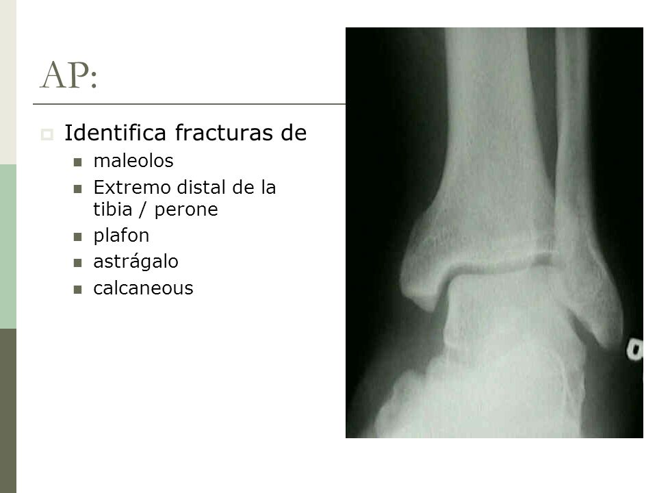 AP: Identifica fracturas de maleolos