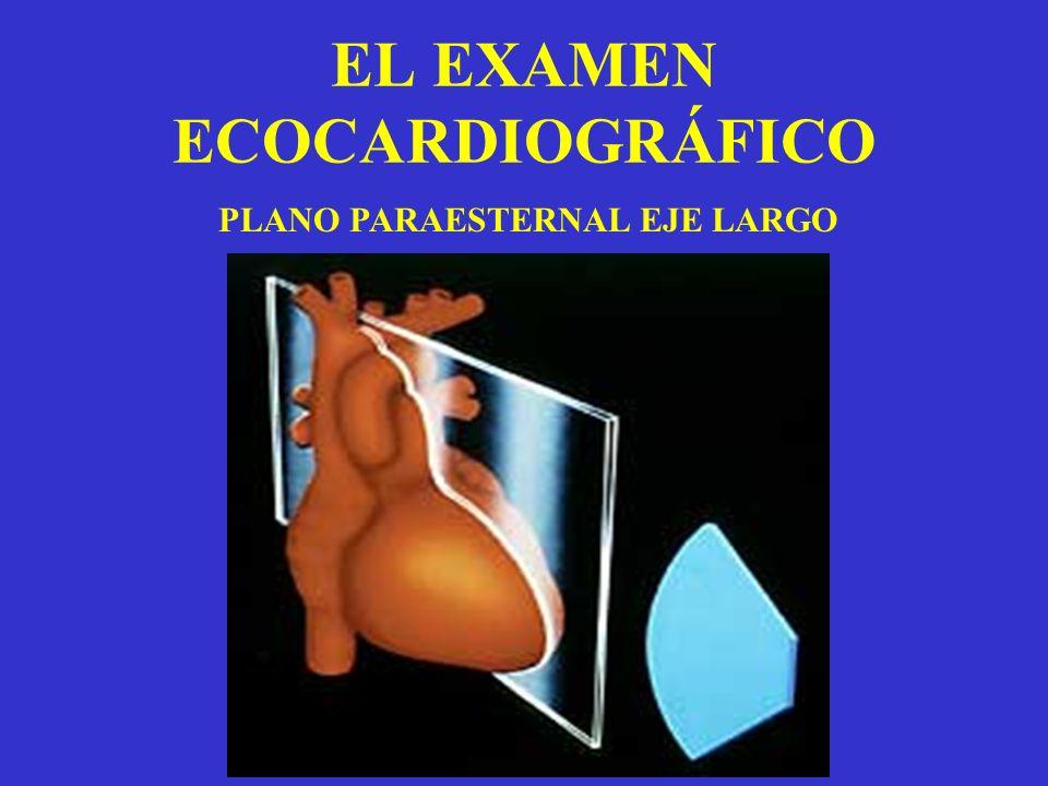 EL EXAMEN ECOCARDIOGRÁFICO