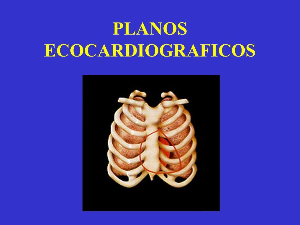 PLANOS ECOCARDIOGRAFICOS