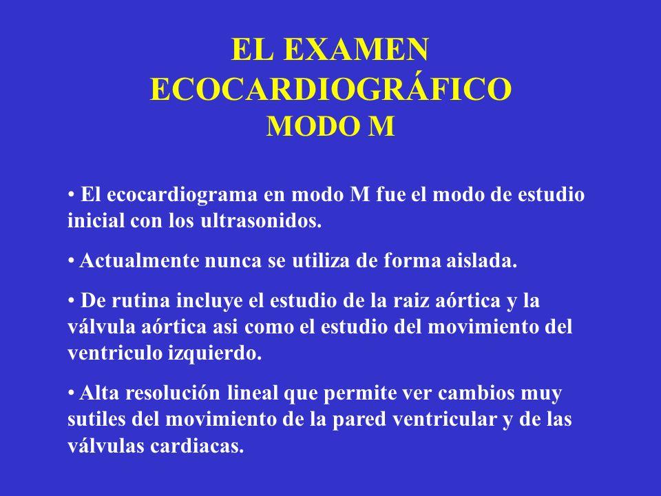EL EXAMEN ECOCARDIOGRÁFICO MODO M