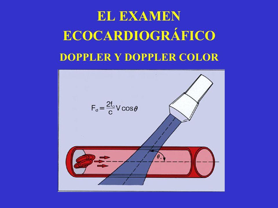 EL EXAMEN ECOCARDIOGRÁFICO DOPPLER Y DOPPLER COLOR