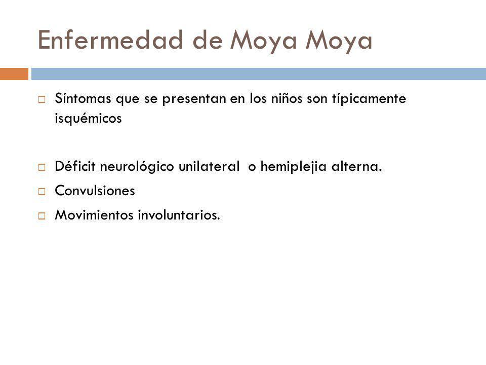 Enfermedad de Moya Moya