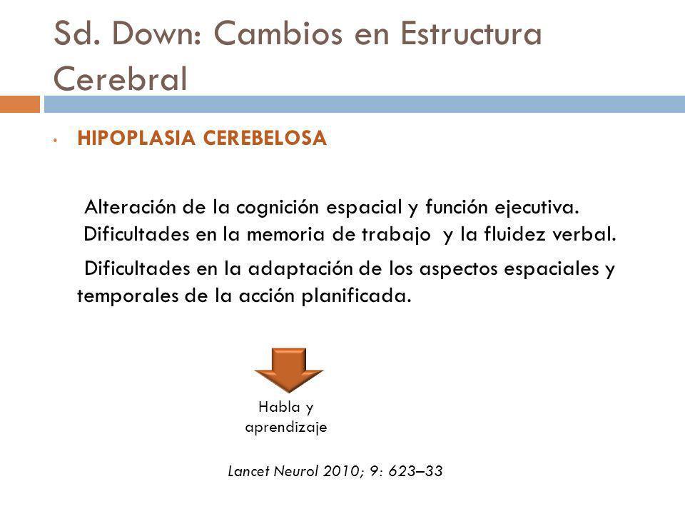 Sd. Down: Cambios en Estructura Cerebral