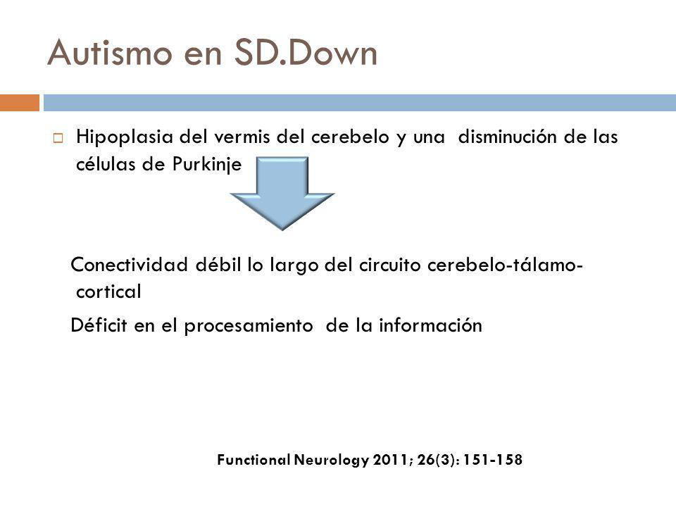 Autismo en SD.Down Hipoplasia del vermis del cerebelo y una disminución de las células de Purkinje.