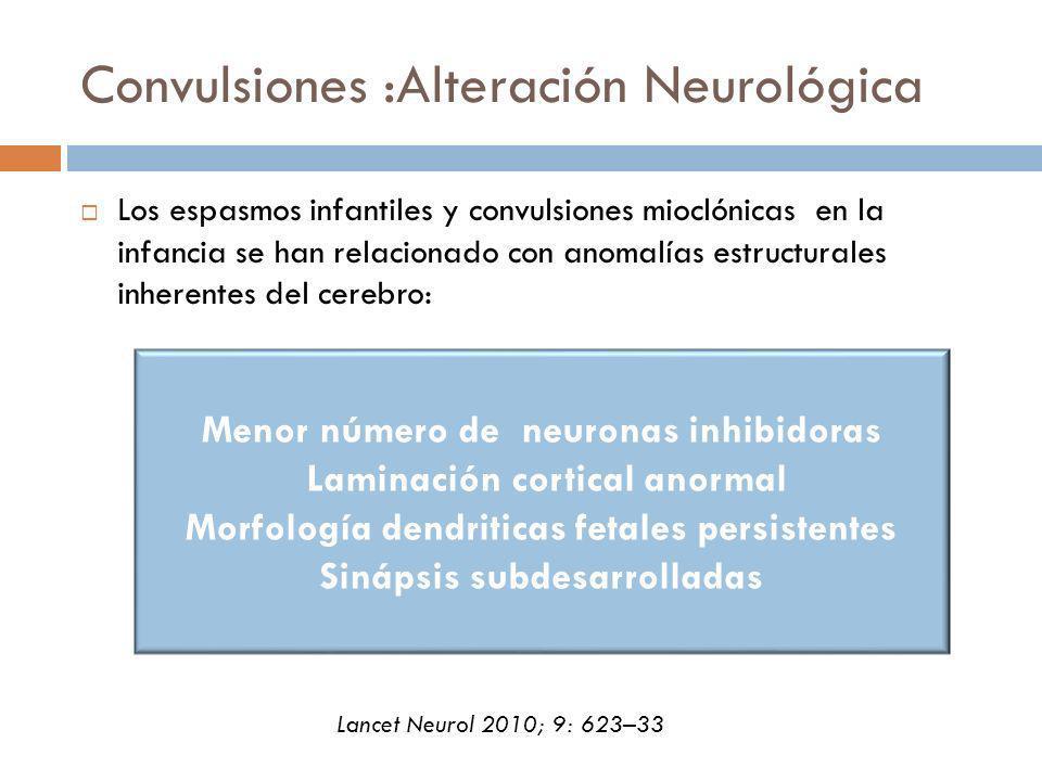 Convulsiones :Alteración Neurológica