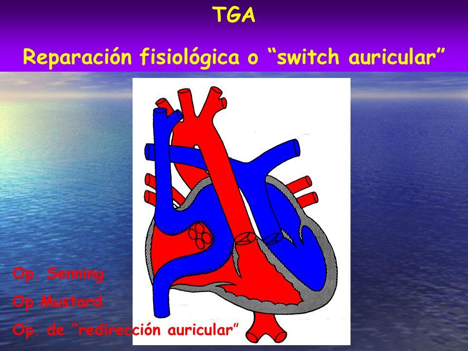 Reparación fisiológica o switch auricular