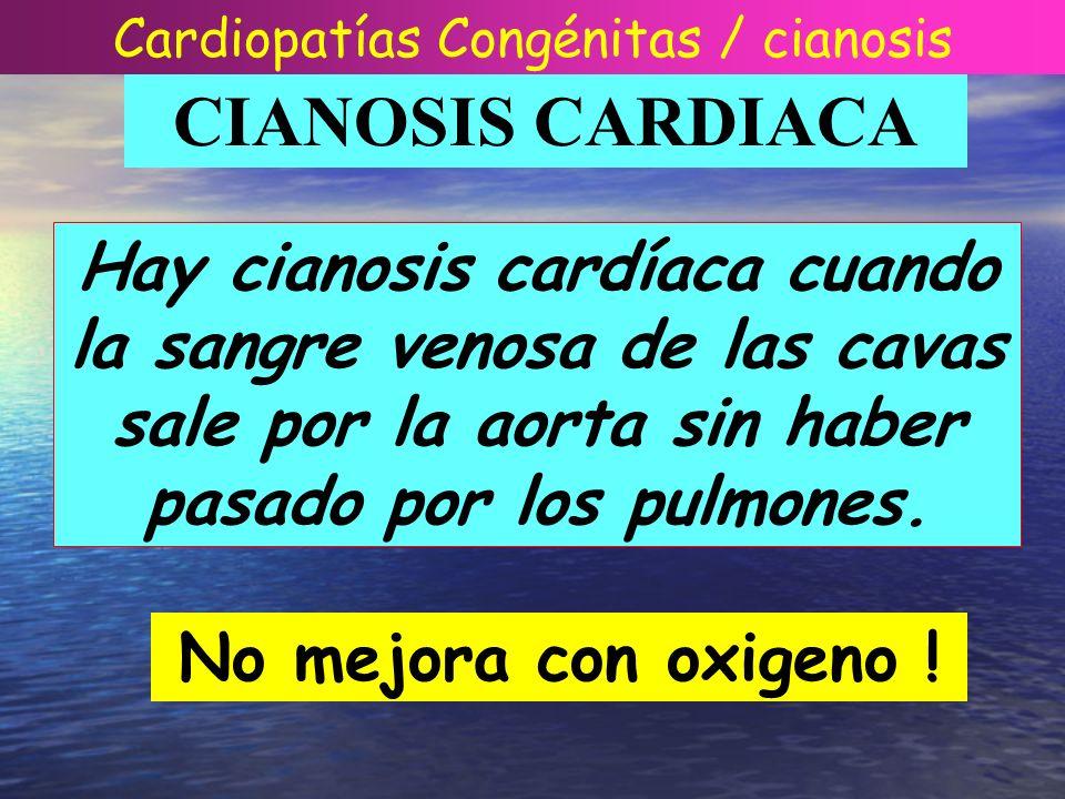 Cardiopatías Congénitas / cianosis