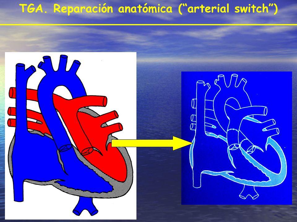 TGA. Reparación anatómica ( arterial switch )