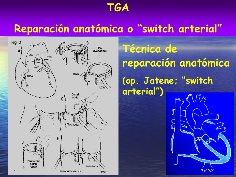 Reparación anatómica o switch arterial