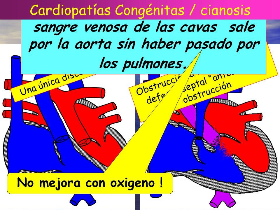 CIANOSIS CARDIACA Cardiopatías Congénitas / cianosis