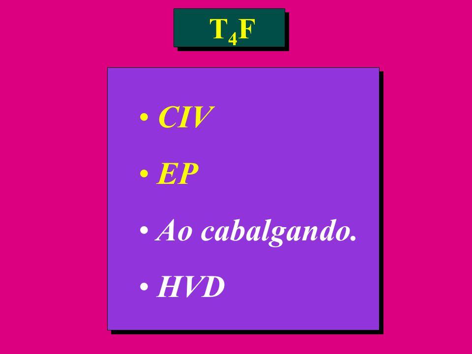 T4F CIV EP Ao cabalgando. HVD
