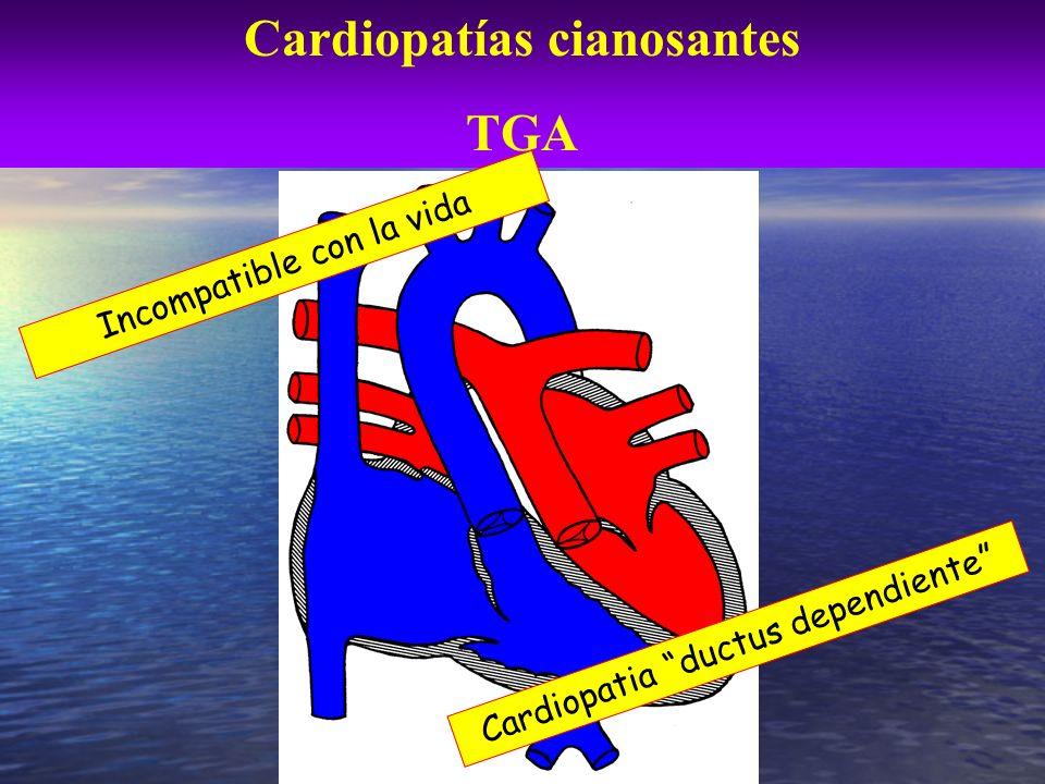 Cardiopatías cianosantes