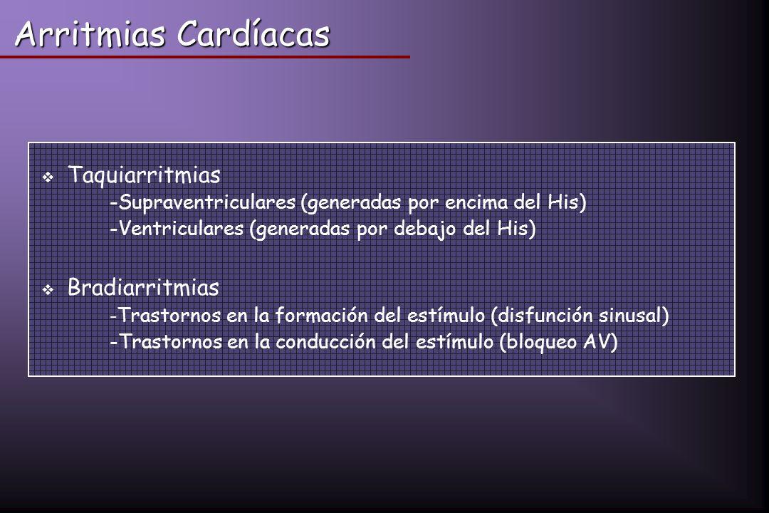 Arritmias Cardíacas Taquiarritmias Bradiarritmias