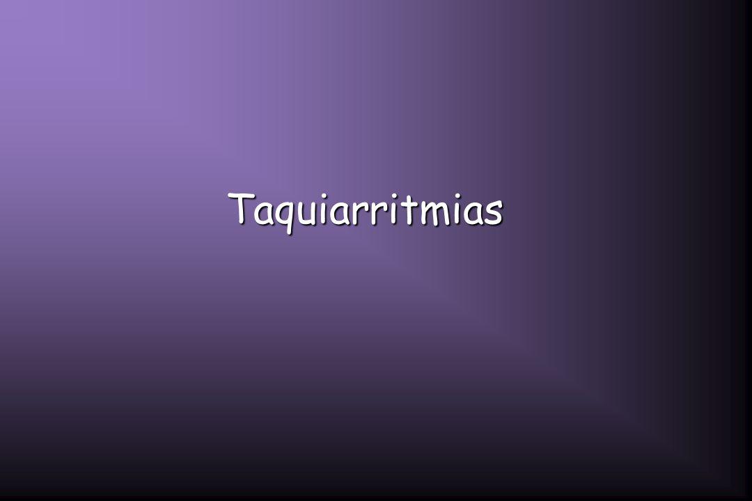 Taquiarritmias