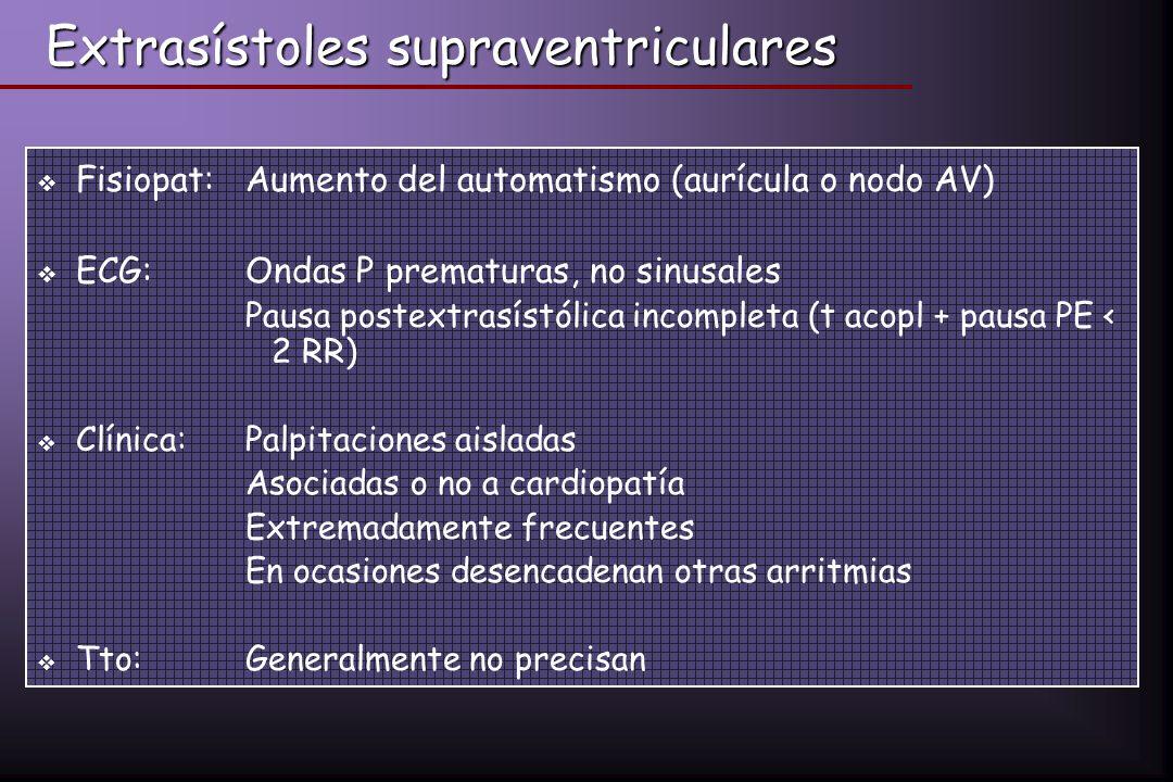 Extrasístoles supraventriculares