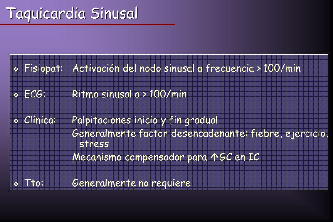 Taquicardia Sinusal Fisiopat: Activación del nodo sinusal a frecuencia > 100/min. ECG: Ritmo sinusal a > 100/min.