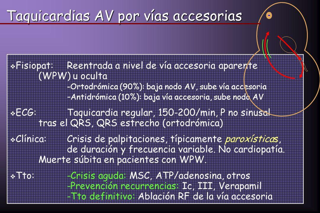 Taquicardias AV por vías accesorias