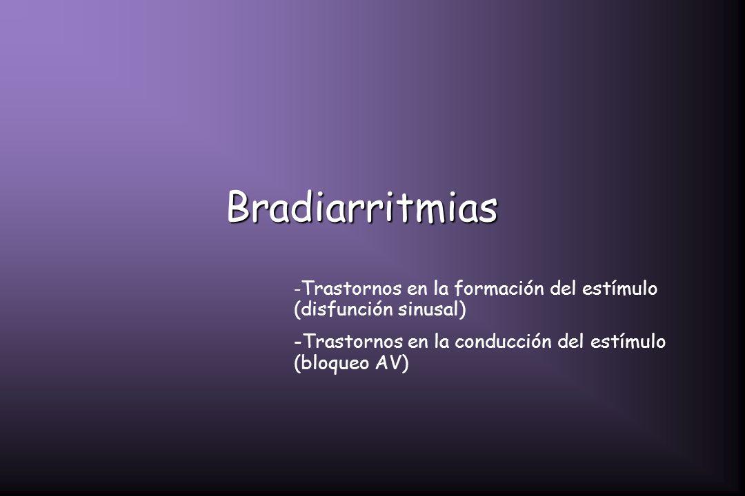 Bradiarritmias -Trastornos en la conducción del estímulo (bloqueo AV)