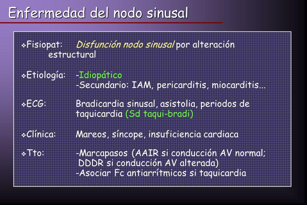 Enfermedad del nodo sinusal