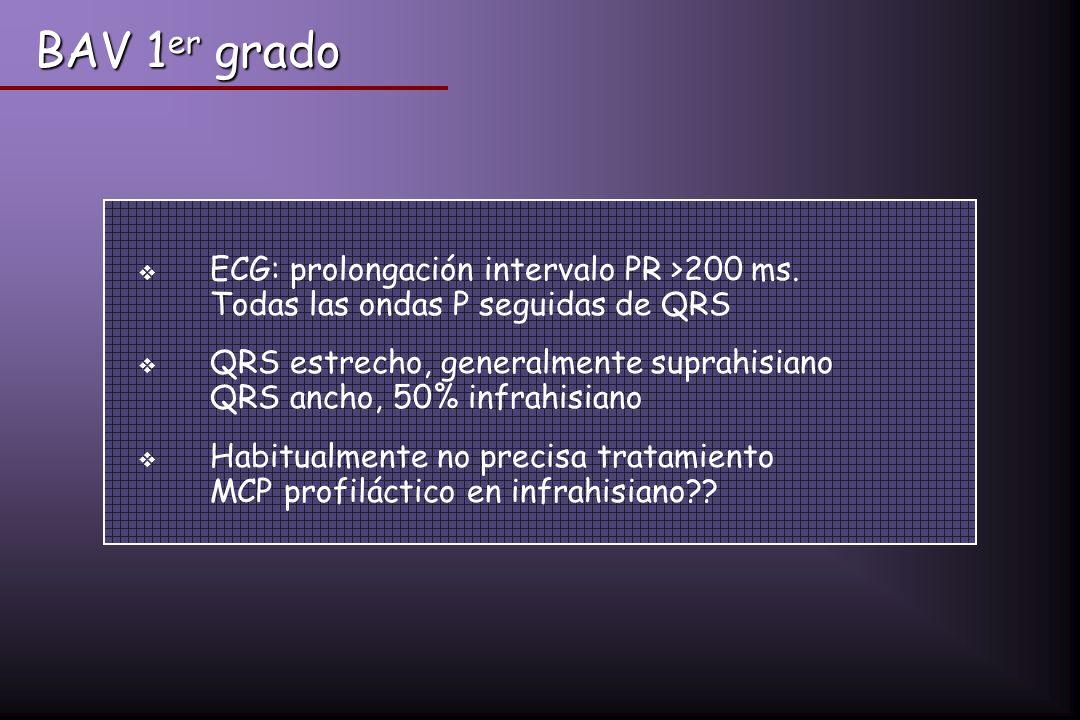BAV 1er grado ECG: prolongación intervalo PR >200 ms. Todas las ondas P seguidas de QRS.
