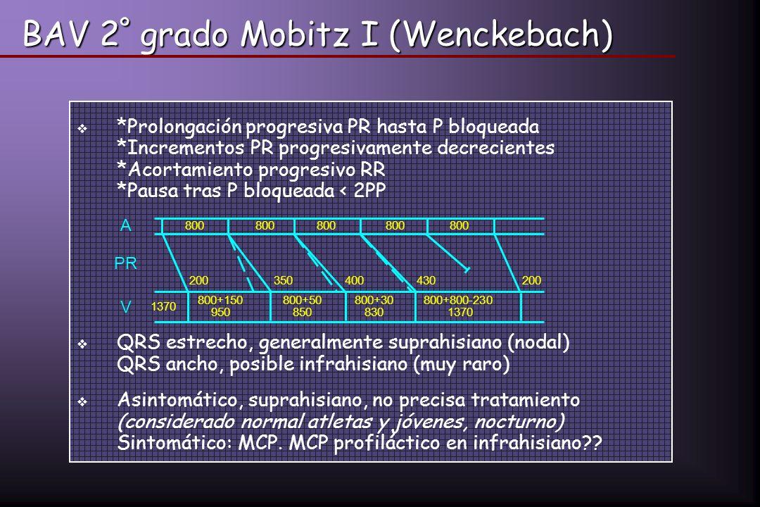 BAV 2º grado Mobitz I (Wenckebach)