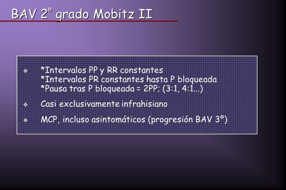 BAV 2º grado Mobitz II *Intervalos PP y RR constantes *Intervalos PR constantes hasta P bloqueada *Pausa tras P bloqueada = 2PP; (3:1, 4:1...)