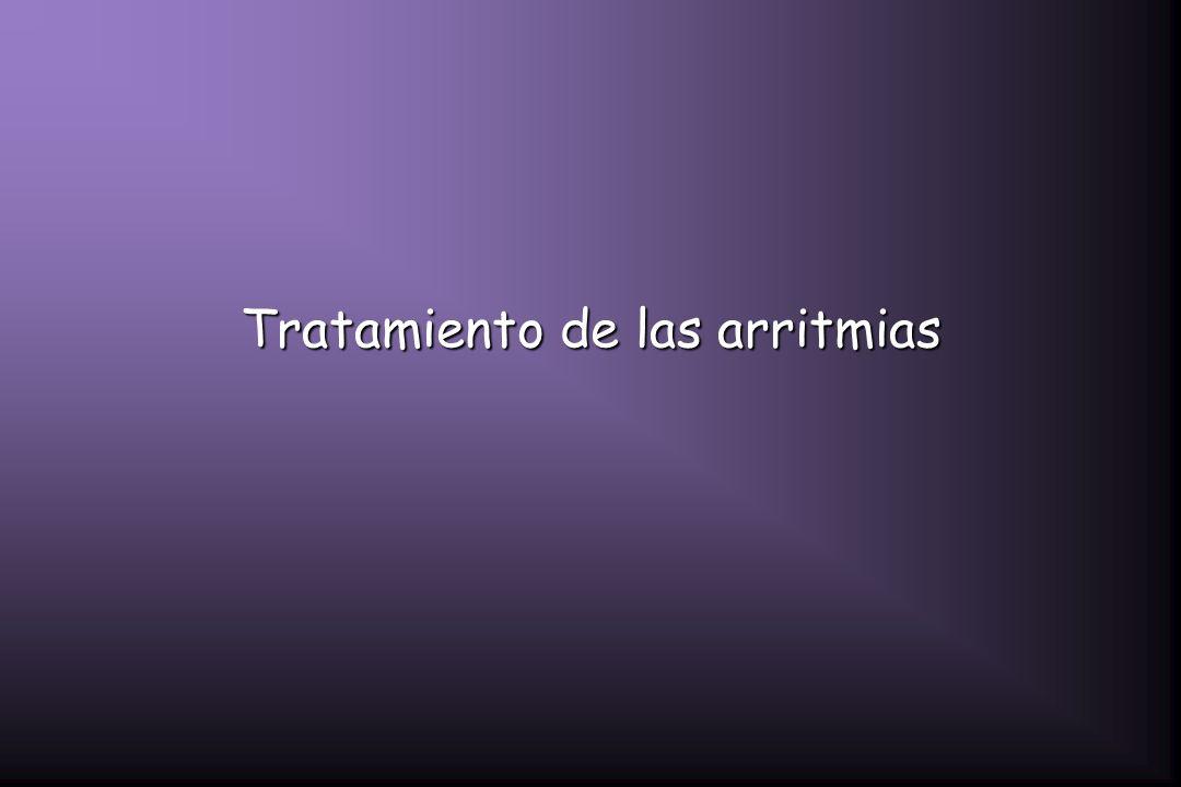Tratamiento de las arritmias