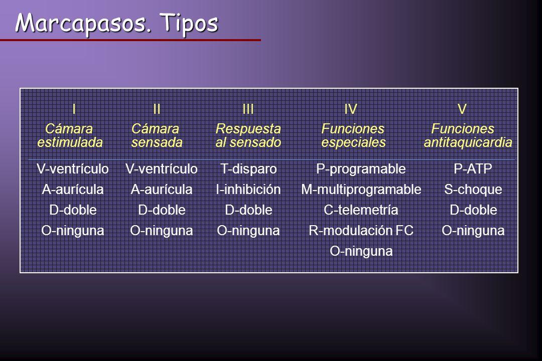 Marcapasos. Tipos V-ventrículo T-disparo P-programable P-ATP