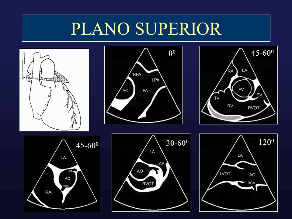 PLANO SUPERIOR00. 45-600. 30-600. 1200. 45-600. Mitral annular diastolic velocities provide useful information about LV diastolic function.