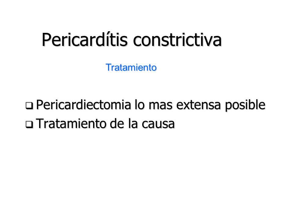Pericardítis constrictiva