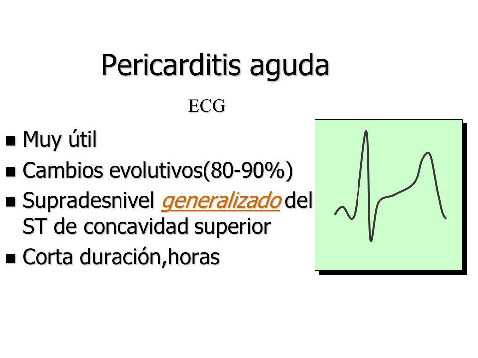 Pericarditis aguda Muy útil Cambios evolutivos(80-90%)