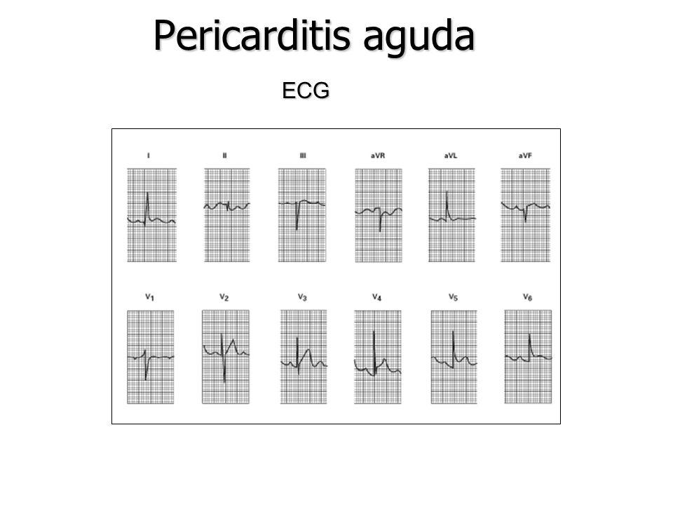 Pericarditis aguda ECG