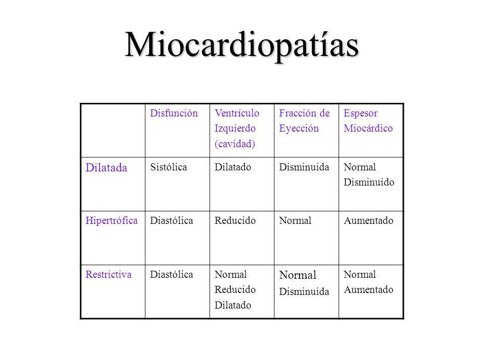 Miocardiopatías Dilatada Disfunción Ventrículo Izquierdo (cavidad)