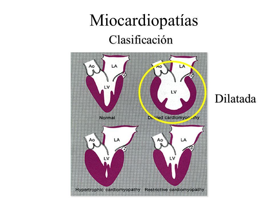 Miocardiopatías Clasificación Dilatada