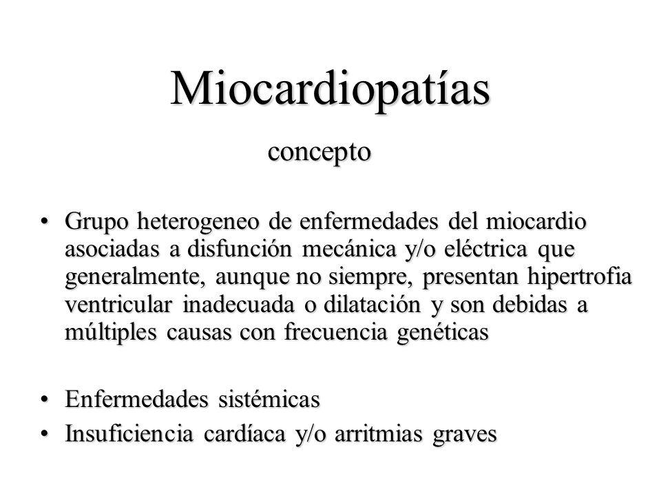 Miocardiopatías concepto