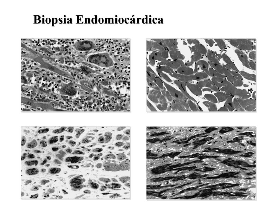 Biopsia Endomiocárdica