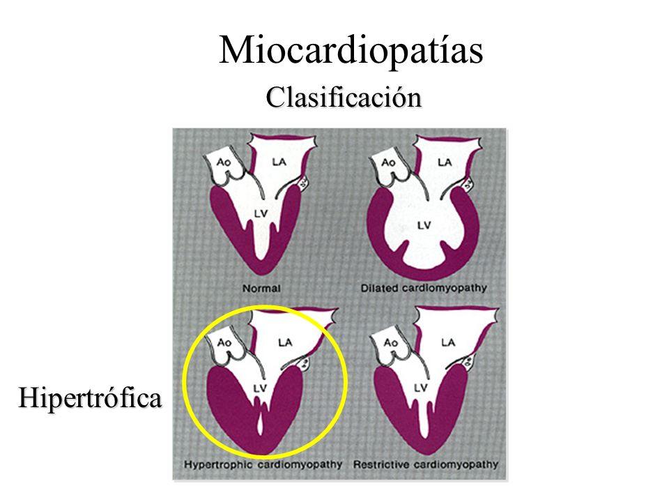 Miocardiopatías Clasificación Hipertrófica