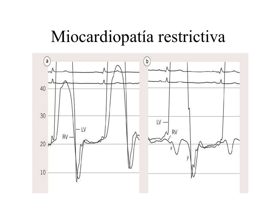 Miocardiopatía restrictiva