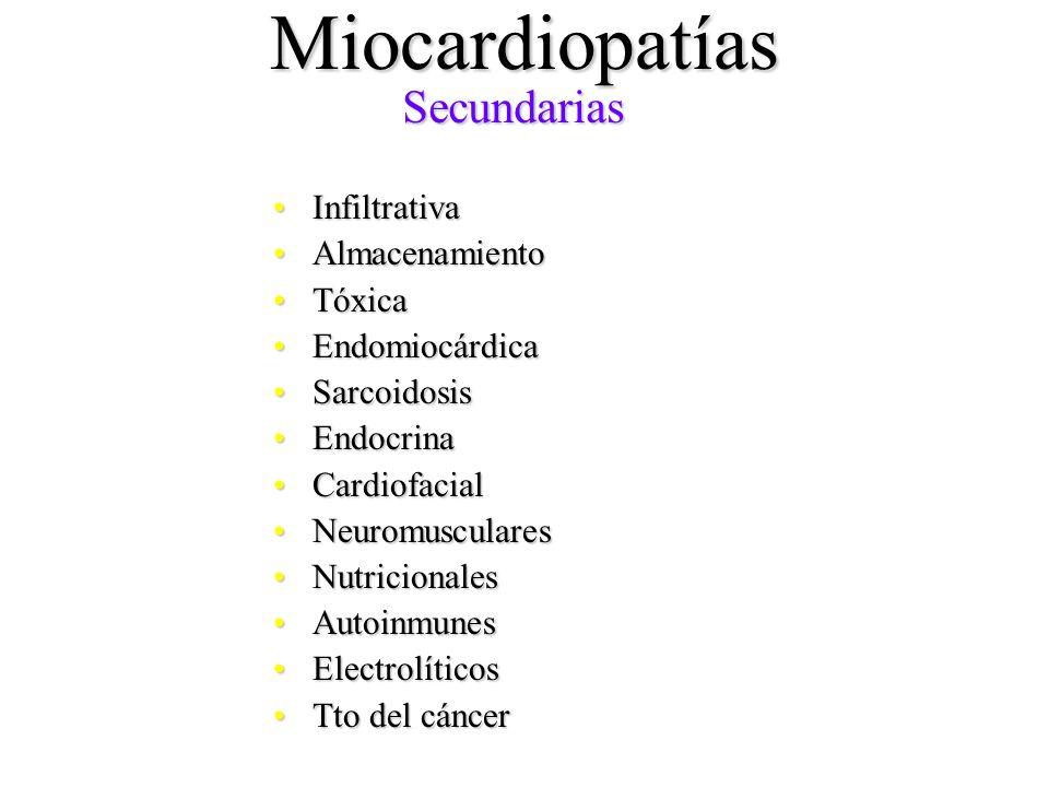 Miocardiopatías Secundarias Infiltrativa Almacenamiento Tóxica