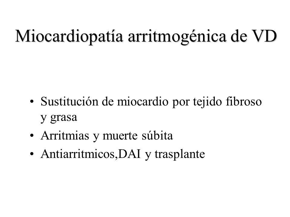 Miocardiopatía arritmogénica de VD