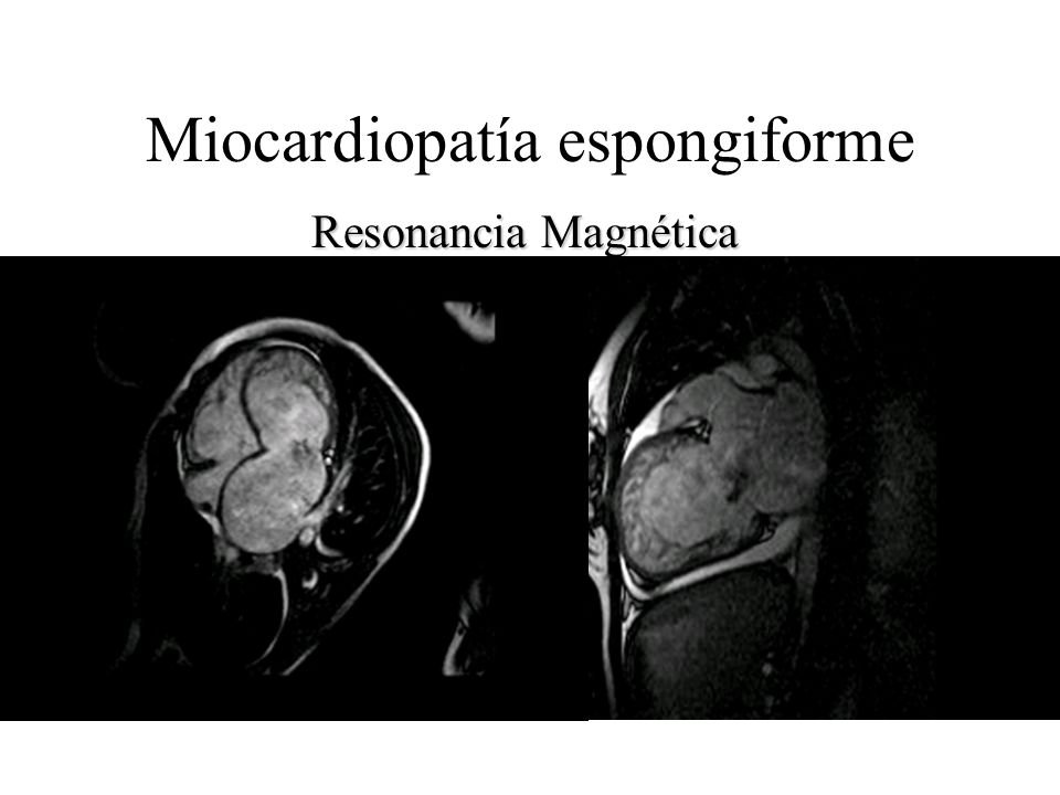 Miocardiopatía espongiforme