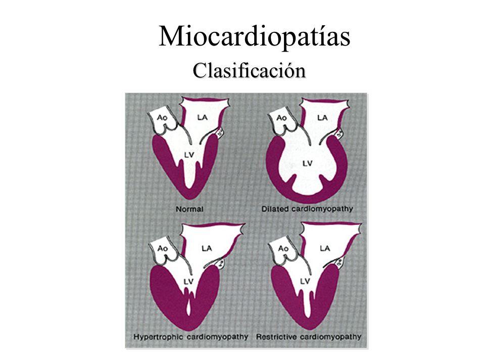 Miocardiopatías Clasificación