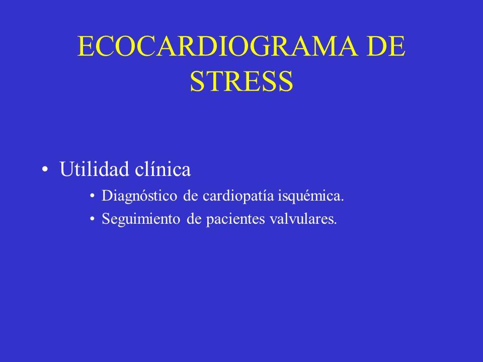 ECOCARDIOGRAMA DE STRESS