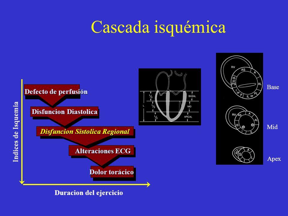 Cascada isquémica Defecto de perfusión Disfuncion Diastolica