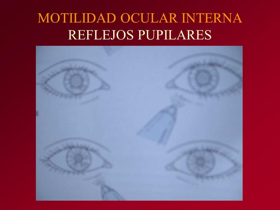 MOTILIDAD OCULAR INTERNA REFLEJOS PUPILARES