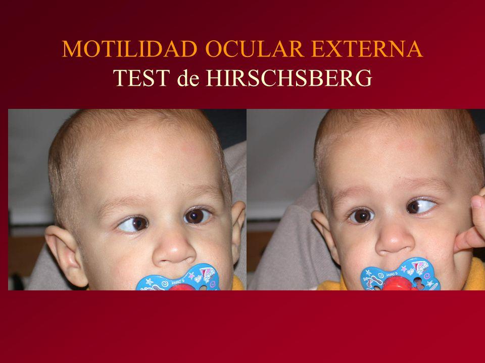 MOTILIDAD OCULAR EXTERNA TEST de HIRSCHSBERG