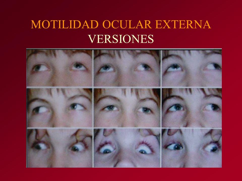 MOTILIDAD OCULAR EXTERNA VERSIONES