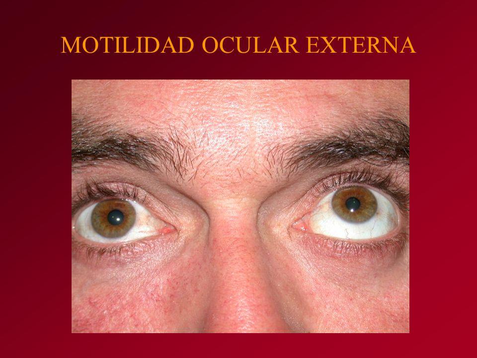 MOTILIDAD OCULAR EXTERNA