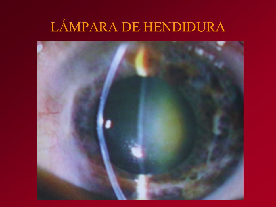 LÁMPARA DE HENDIDURA