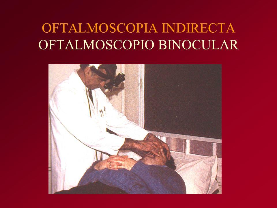 OFTALMOSCOPIA INDIRECTA OFTALMOSCOPIO BINOCULAR